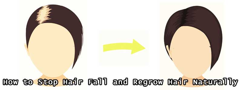 How to Stop Hair Fall